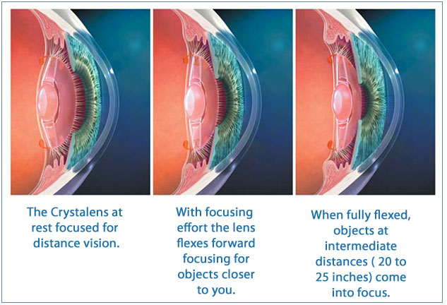 Crystalens accommodating implant lens used in refractive lens exchange.
